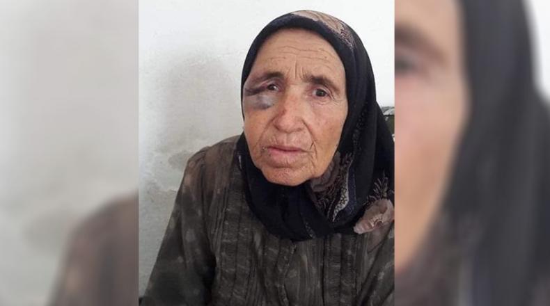كما حدث مع زوجها.. وفاة عجوز تعرّضت للضرب والسرقة في عفرين
